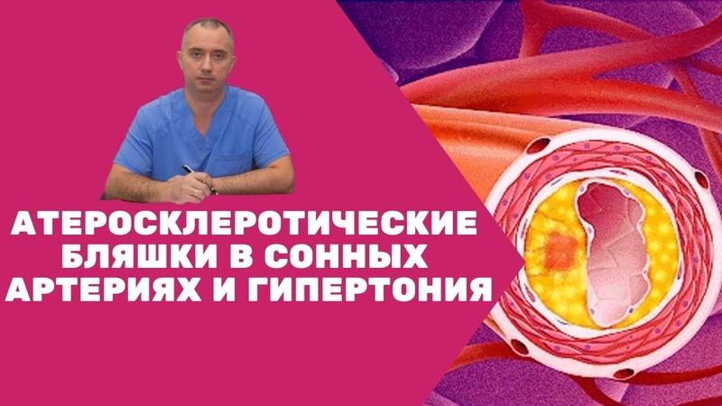 Атеросклеротические бляшки в сонных артериях и гипертония