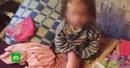 Истощенную девочку с обморожениями изъяли из приемной семьи в Брянске