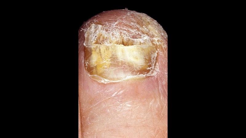 Грибок ногтей простое лечение Nail fungus a Simple treatment