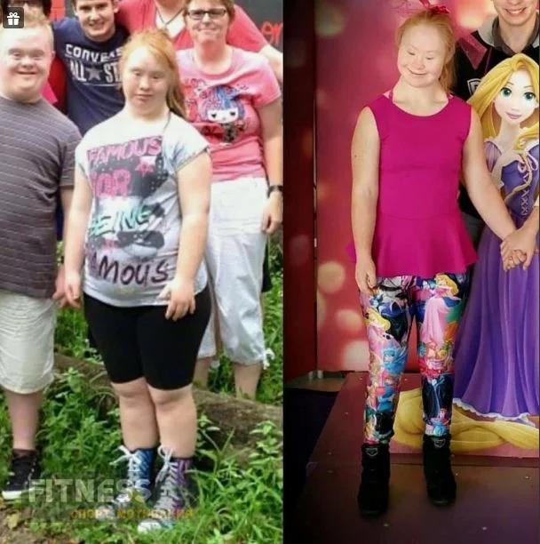 Девушка с синдромом Дауна похудела на 20 кг и стала востребованной моделью